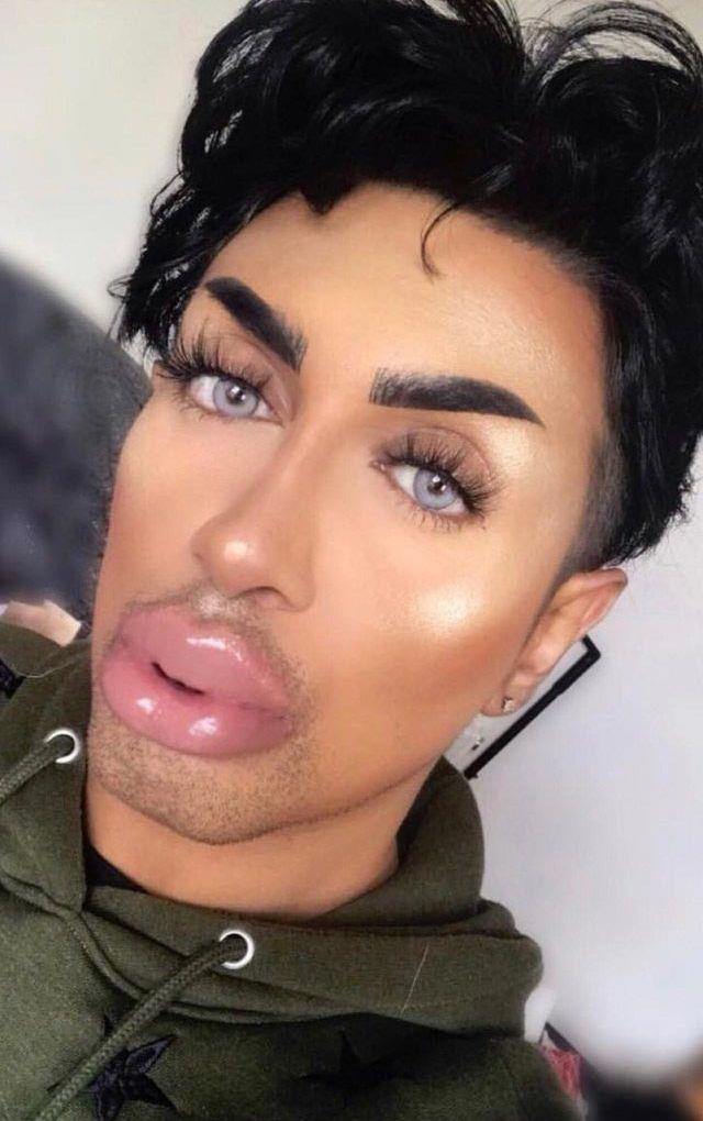 Люди переборщили с губами так, что шевелить ими теперь тяжело